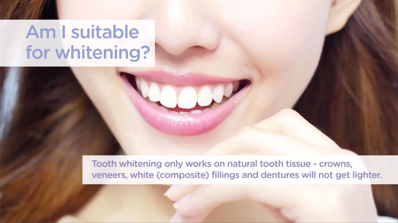 Promoting teeth whitening at your dental practice