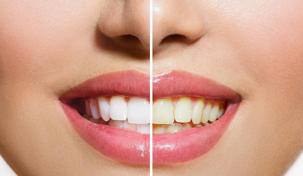 5 ways to start the whitening conversation with your patients.